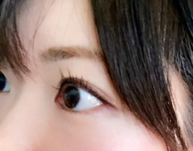 眼に良い成分はアントシアニンだけではない!ビタミンAの効果で眼の健康を保とう!2