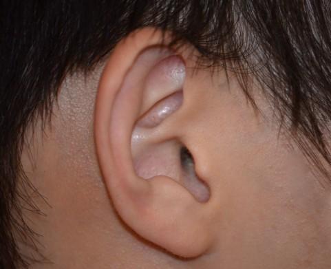 不快な耳なりの原因は?