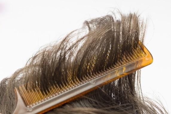 髪のトラブルなのに皮膚科?皮膚科に行くべき症状とは。その見極め方